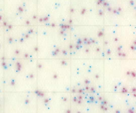 サニ太くん 酵素基質サルモネラ (100枚)