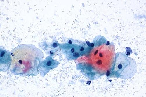 パパニコロウ染色液 3c, EA65 粘膜細胞診用。細胞質の染色結果: 赤色 109270 100ML