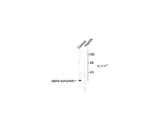 Anti-phospho-Alpha Synuclein (Ser129); 100 μL AB9850