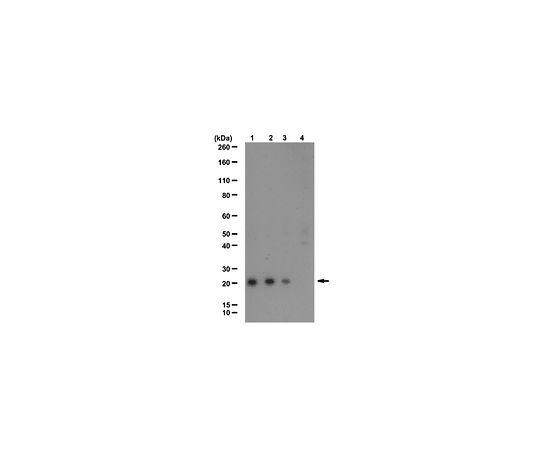 Anti-Ubiquityl Histone H2A.X (Lys119); 100 μL AB10029