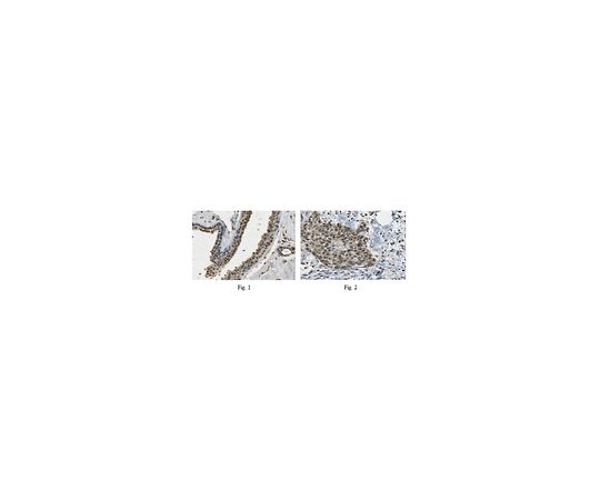 Anti-PALB2 ABC331