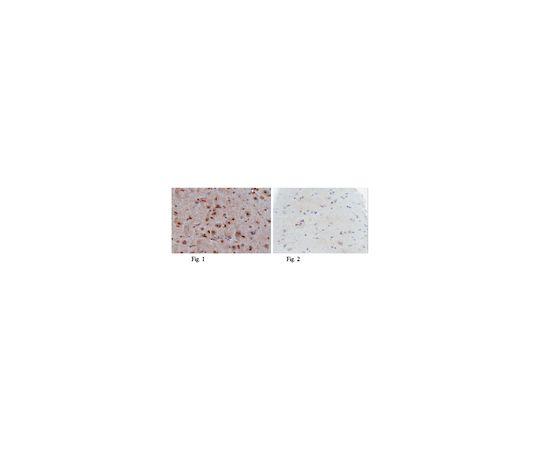 Anti-p53 (wild type), clone PAb1620; 100 μg MABE339