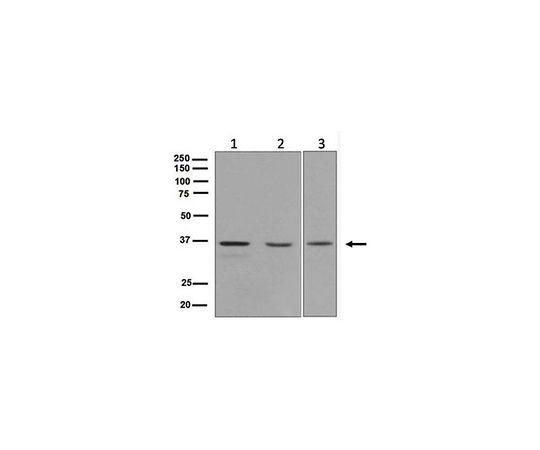 [取扱停止]Anti-ERCC1, clone EPR7062, Rabbit Monoclonal MABE608