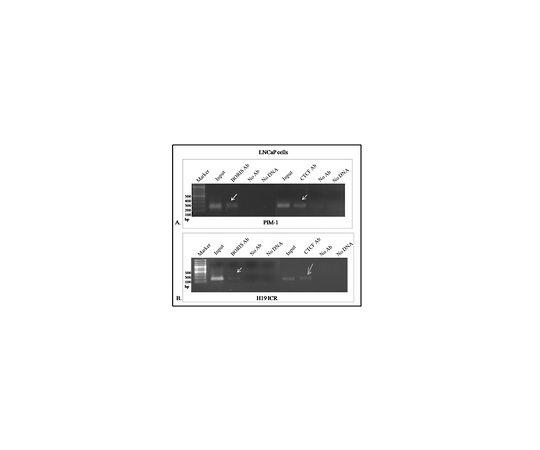 Anti-BORIS/CTCFL Antibody, clone 4A7 MABE1125