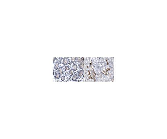 Anti-INK4a (p16) Antibody, clone 13H4.1 MABE1328