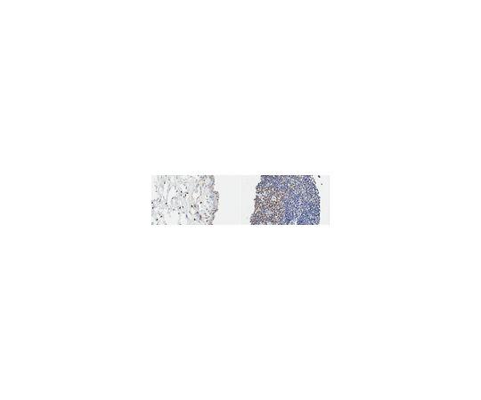 Anti-LMO2 (Rhombotin-2) Antibody, clone 299B MABE1801