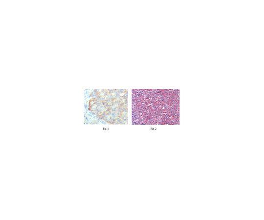 Anti-KARS, clone 8G12C1 MABF187