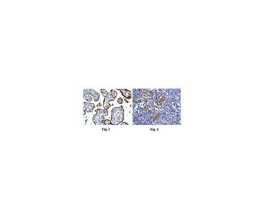 [取扱停止]Anti-CD59, clone EPR6425(2), Rabbit Monoclonal MABF754
