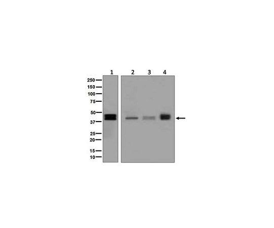 Anti-TFPI, clone EPR7941, Rabbit Monoclonal MABF757