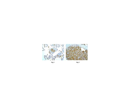 [取扱停止]Anti-Glycophorin A, clone EPR8200, Rabbit Monoclonal MABF758