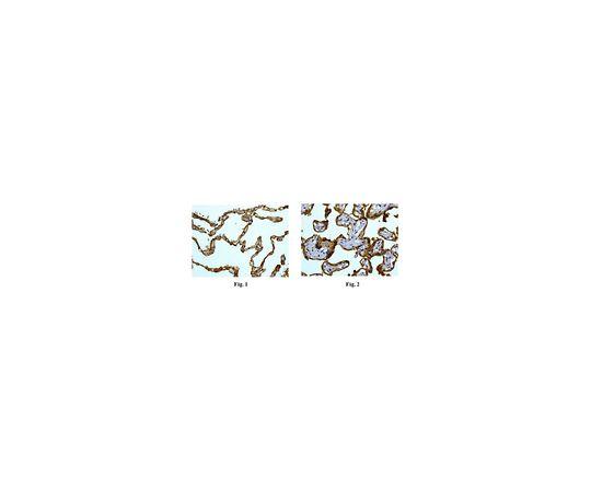 [取扱停止]Anti-CD55, clone EPR6689, Rabbit Monoclonal MABF763