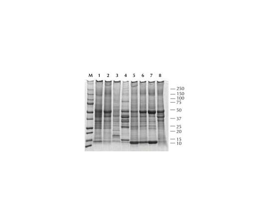 Total Protein Extraction Kit; 1 kit 2140