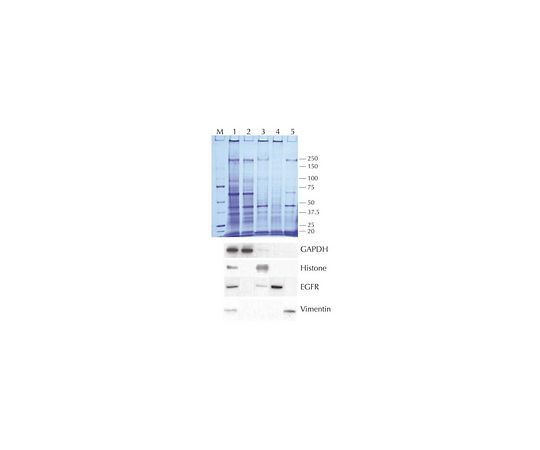 Compartment Protein Extraction Kit; 1 kit 2145