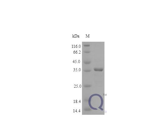 Human MICA [E.coli] QP10171-ec-250ug